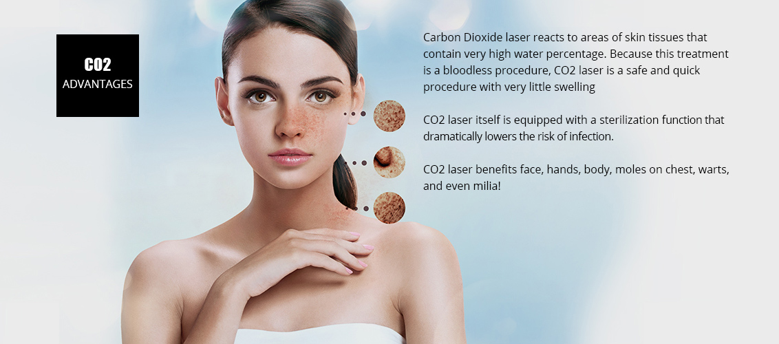 Carbon Dioxide laser reacts to areas of skin 				tissues that contain very high water percentage.  				Because this treatment is a bloodless procedure,  				CO2 laser is a safe and quick procedure with very  				little swelling