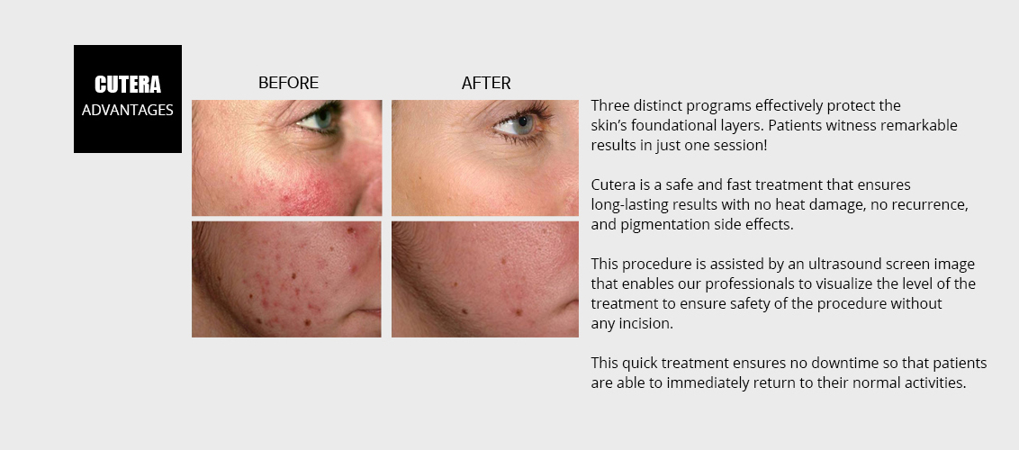 Three distinct programs effectively  				protect the skin's foundational layers. 				Patients witness remarkable results 				in just one session!