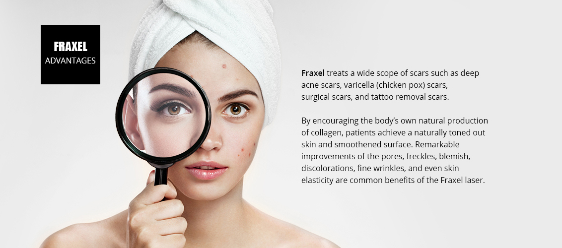 Fraxel treats a wide scope of scars such as deep 				acne scars, varicella (chicken pox) scars, 				surgical scars, and tattoo removal scars.