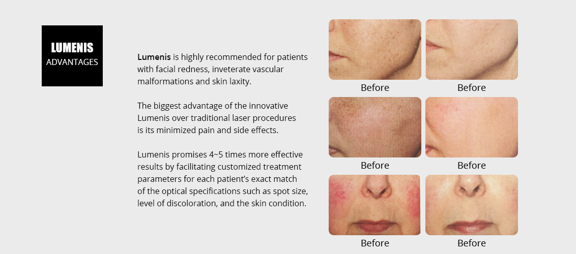 Lumenis is highly recommended for patients 				with facial redness, inveterate vascular 				malformations and skin laxity.