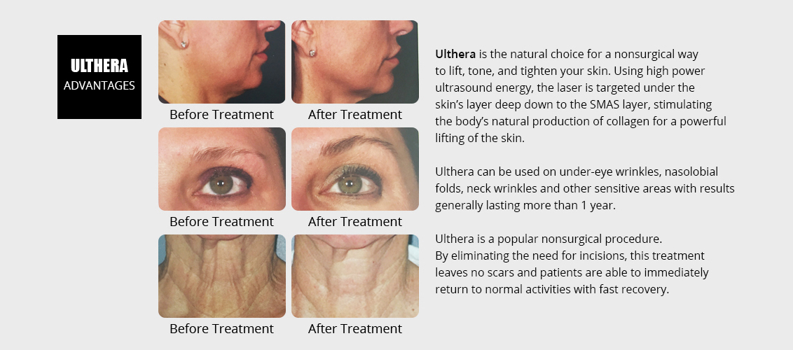 Ulthera is the natural choice for a nonsurgical 					way to lift, tone, and tighten your skin. Using  					high power ultrasound energy, the laser is  					targeted under the skin's layer deep  					down to the SMAS layer, stimulating the body's  					natural production of collagen for a powerful  					lifting of the skin.